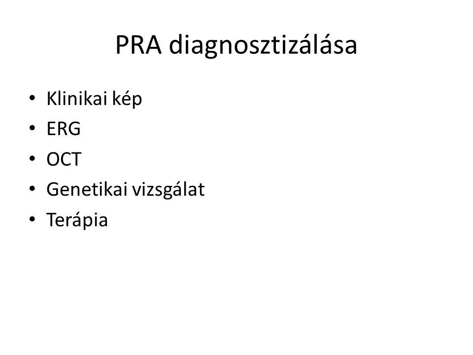 PRA diagnosztizálása Klinikai kép ERG OCT Genetikai vizsgálat Terápia