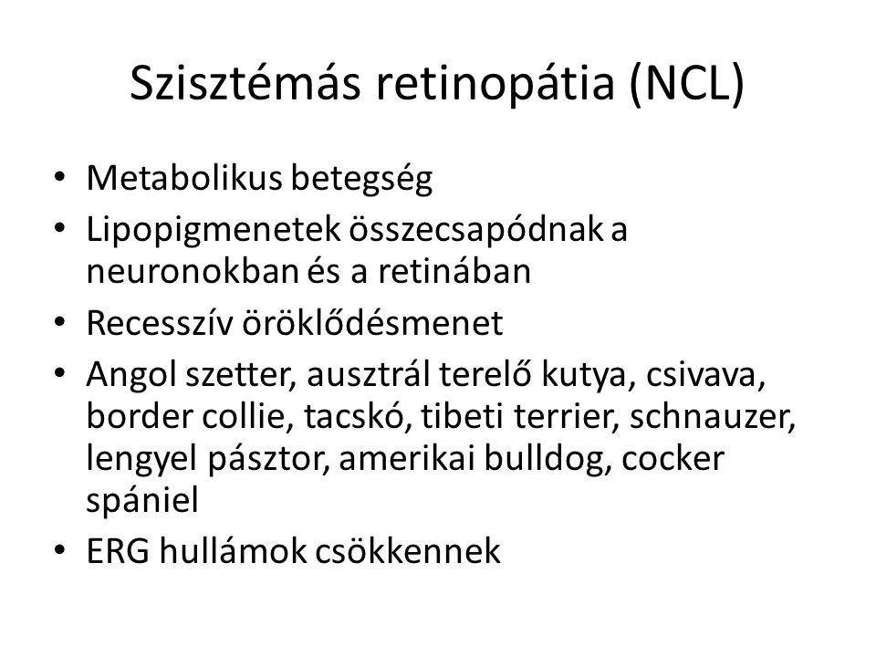 Szisztémás retinopátia (NCL)