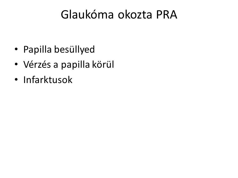 Glaukóma okozta PRA Papilla besüllyed Vérzés a papilla körül