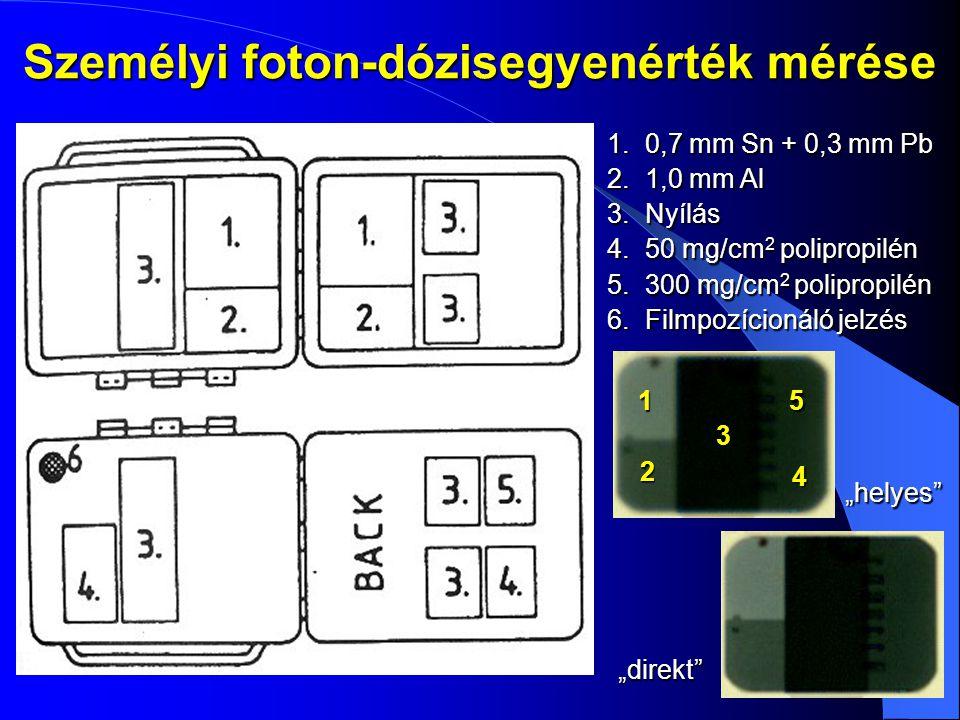 Személyi foton-dózisegyenérték mérése