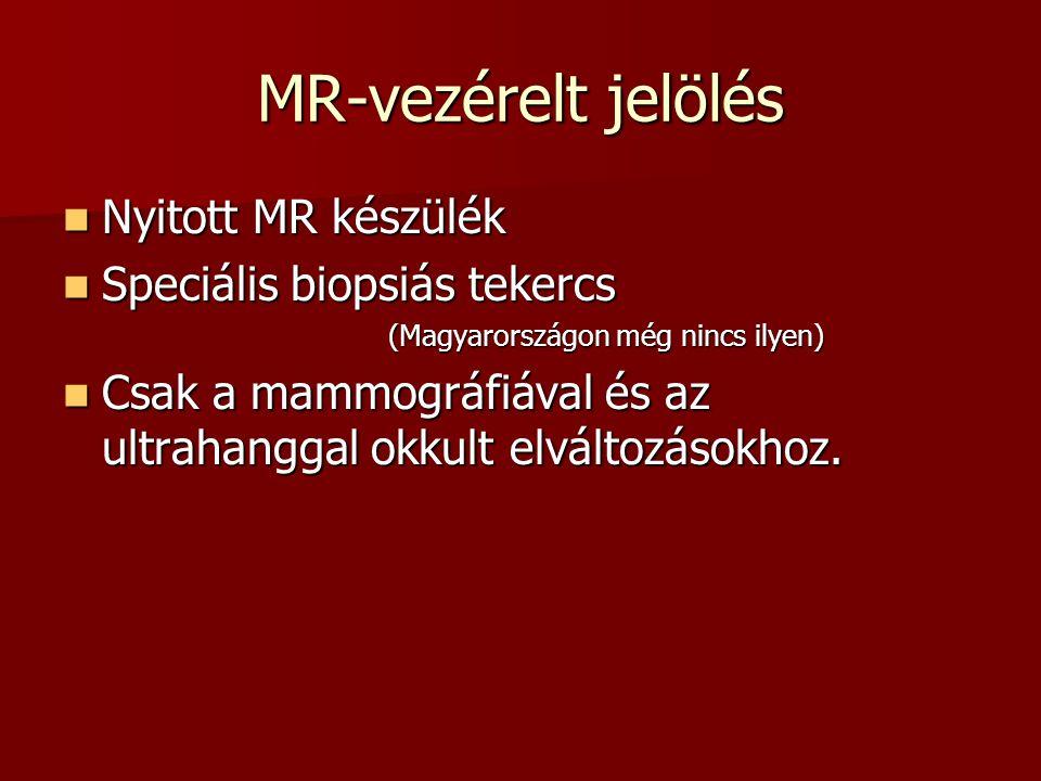 MR-vezérelt jelölés Nyitott MR készülék Speciális biopsiás tekercs