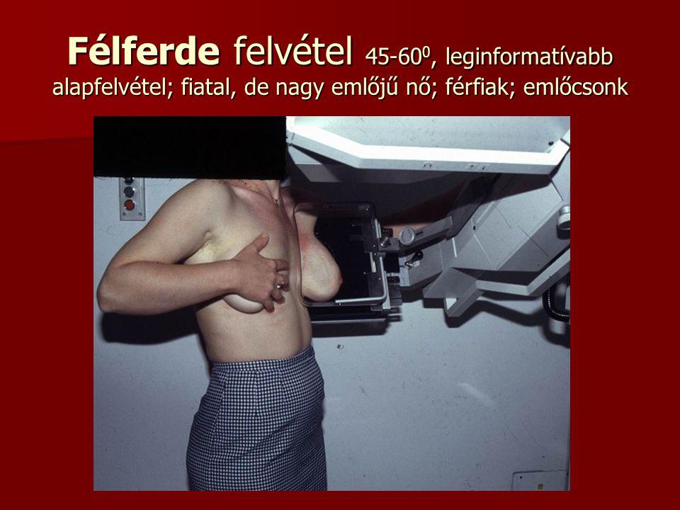 Félferde felvétel 45-600, leginformatívabb alapfelvétel; fiatal, de nagy emlőjű nő; férfiak; emlőcsonk