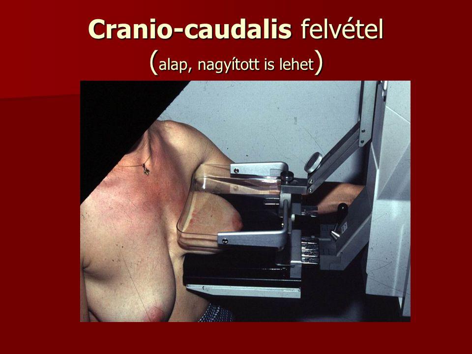 Cranio-caudalis felvétel (alap, nagyított is lehet)