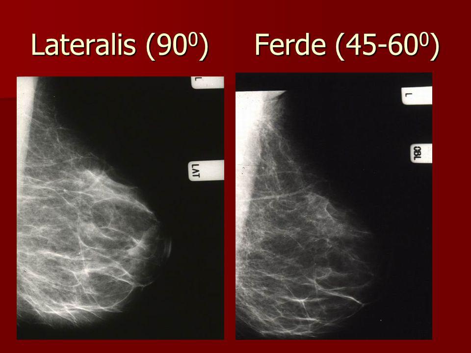 Lateralis (900) Ferde (45-600)