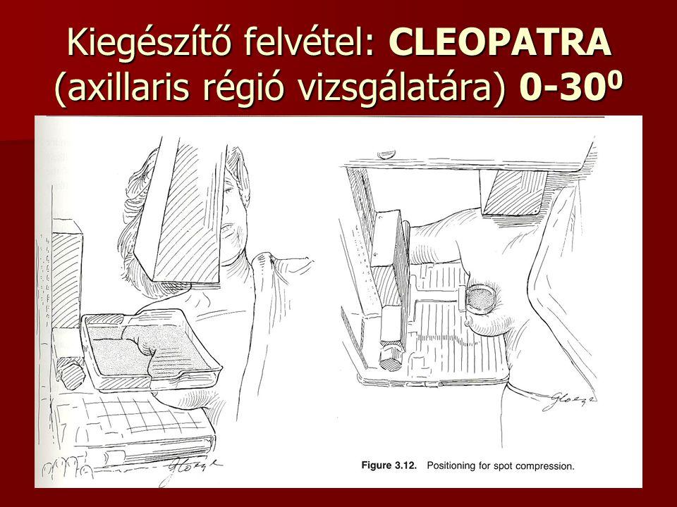 Kiegészítő felvétel: CLEOPATRA (axillaris régió vizsgálatára) 0-300