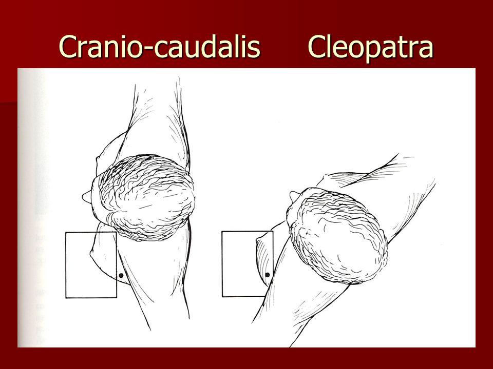 Cranio-caudalis Cleopatra