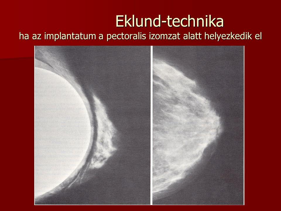 Eklund-technika ha az implantatum a pectoralis izomzat alatt helyezkedik el