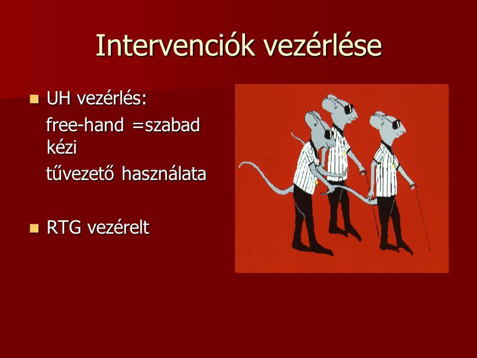 Intervenciók vezérlése