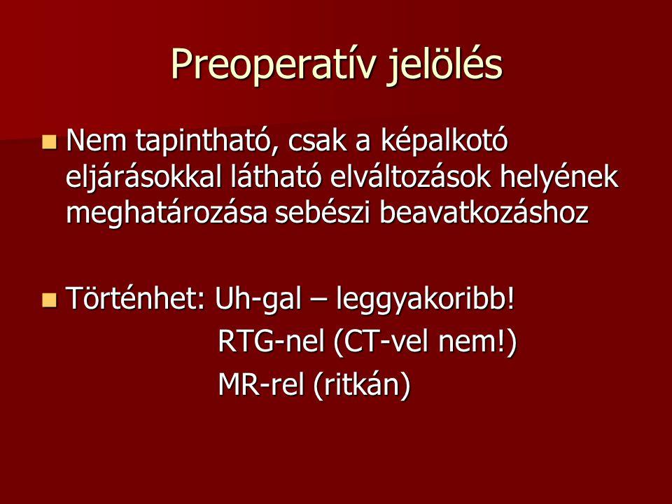 Preoperatív jelölés Nem tapintható, csak a képalkotó eljárásokkal látható elváltozások helyének meghatározása sebészi beavatkozáshoz.