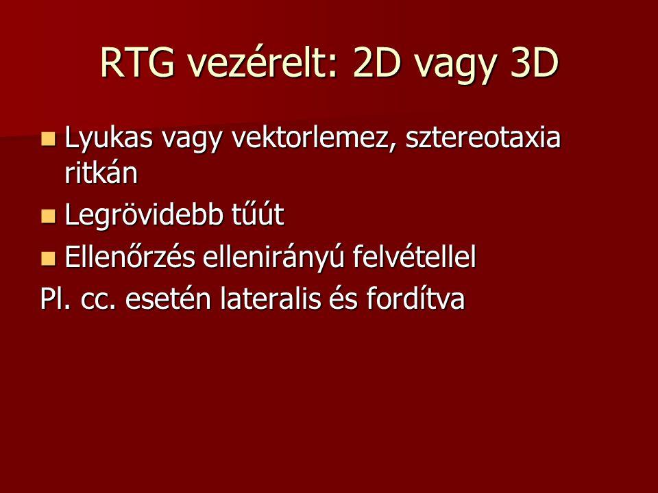 RTG vezérelt: 2D vagy 3D Lyukas vagy vektorlemez, sztereotaxia ritkán