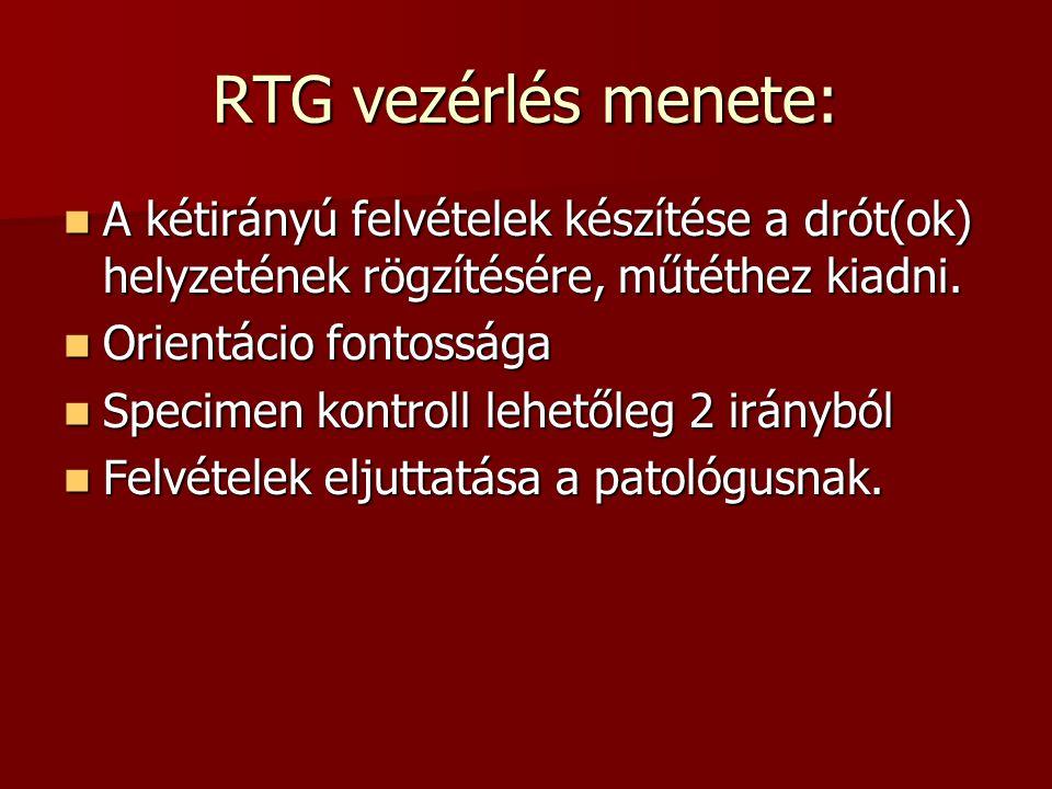 RTG vezérlés menete: A kétirányú felvételek készítése a drót(ok) helyzetének rögzítésére, műtéthez kiadni.