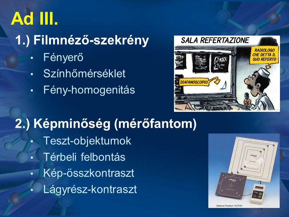 Ad III. 1.) Filmnéző-szekrény 2.) Képminőség (mérőfantom) Fényerő