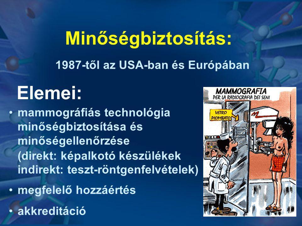 Minőségbiztosítás: Elemei: 1987-től az USA-ban és Európában