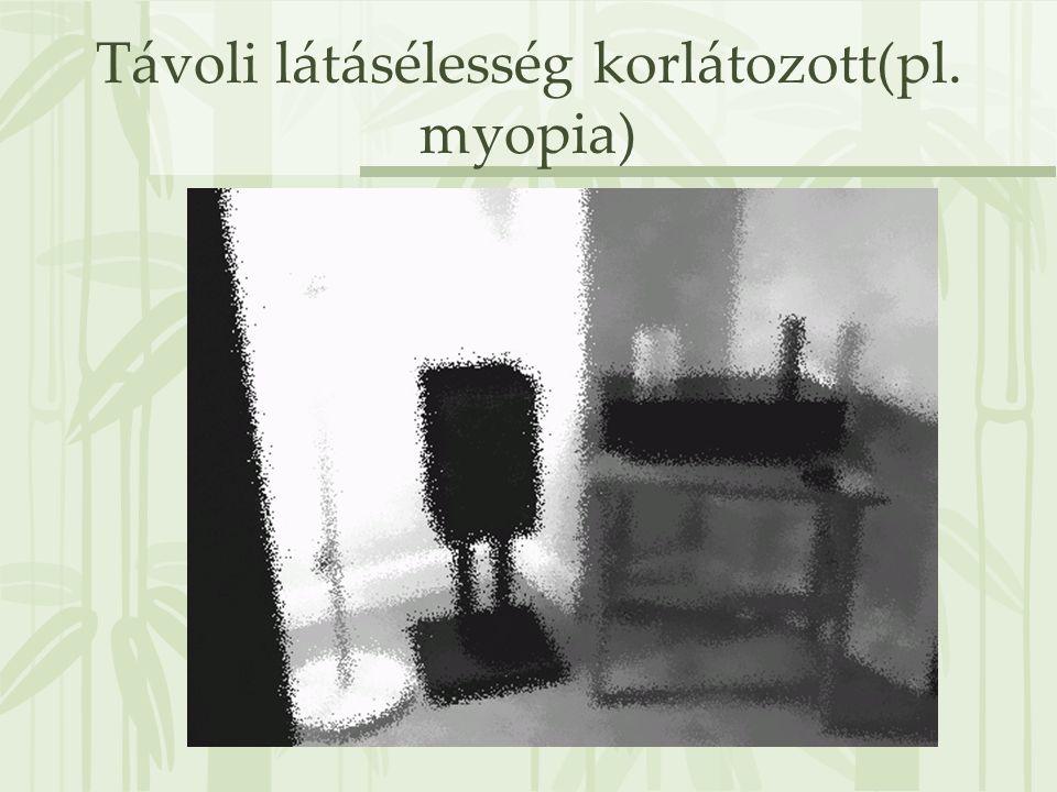 Távoli látásélesség korlátozott(pl. myopia)