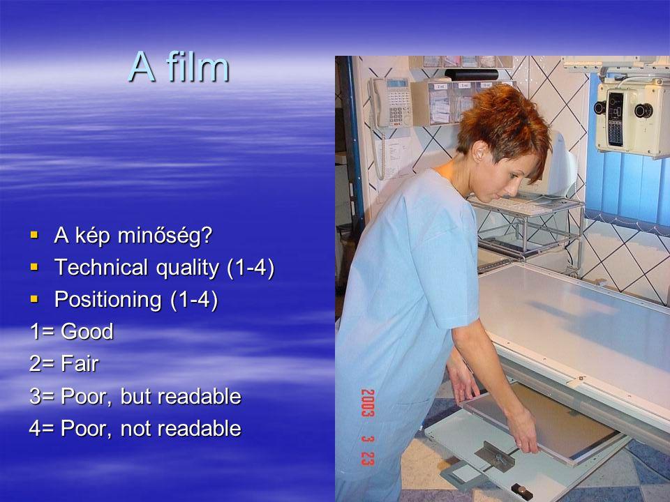 A film A kép minőség Technical quality (1-4) Positioning (1-4)