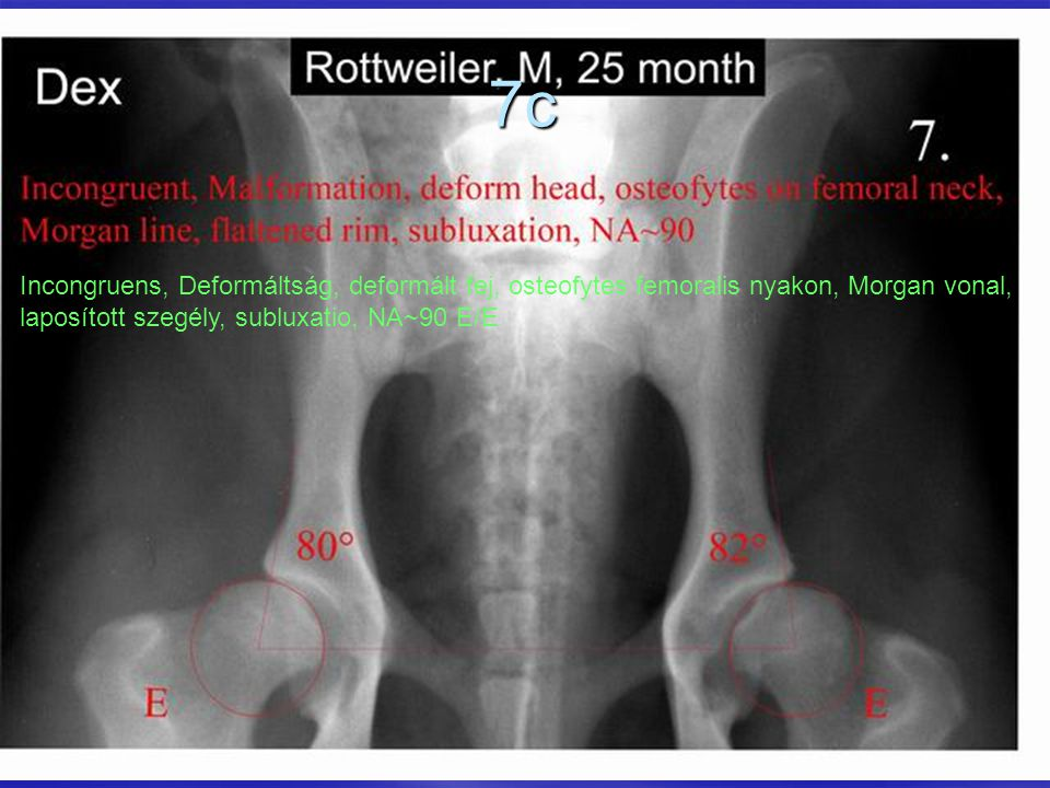 7c Incongruens, Deformáltság, deformált fej, osteofytes femoralis nyakon, Morgan vonal, laposított szegély, subluxatio, NA~90 E/E.