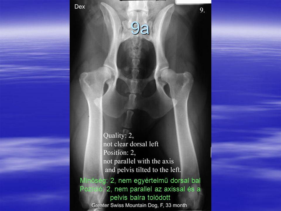 9a Minőség: 2, nem egyértelmű dorsal bal