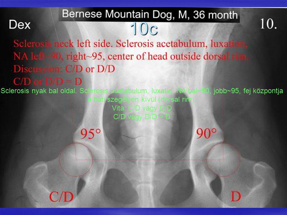 10c Sclerosis nyak bal oldal. Sclerosis acetabulum, luxatio, NA bal~90, jobb~95, fej központja a háti szegélyen kívül (dorsal rim).