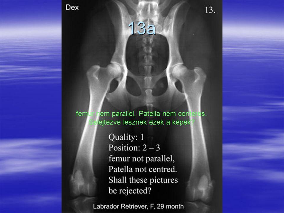 13a femur nem parallel, Patella nem centeres. Selejtezve lesznek ezek a képek