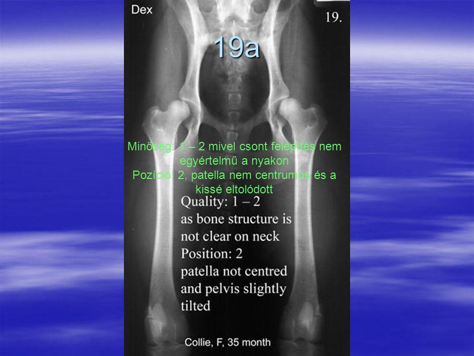19a Minőség: 1 – 2 mivel csont felépítés nem egyértelmű a nyakon