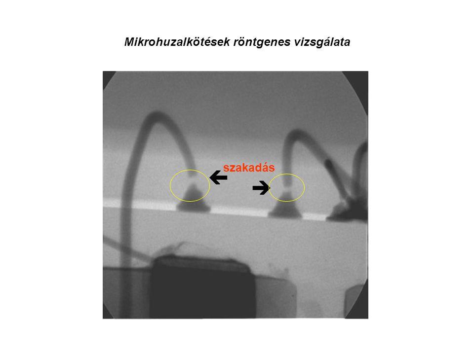 Mikrohuzalkötések röntgenes vizsgálata