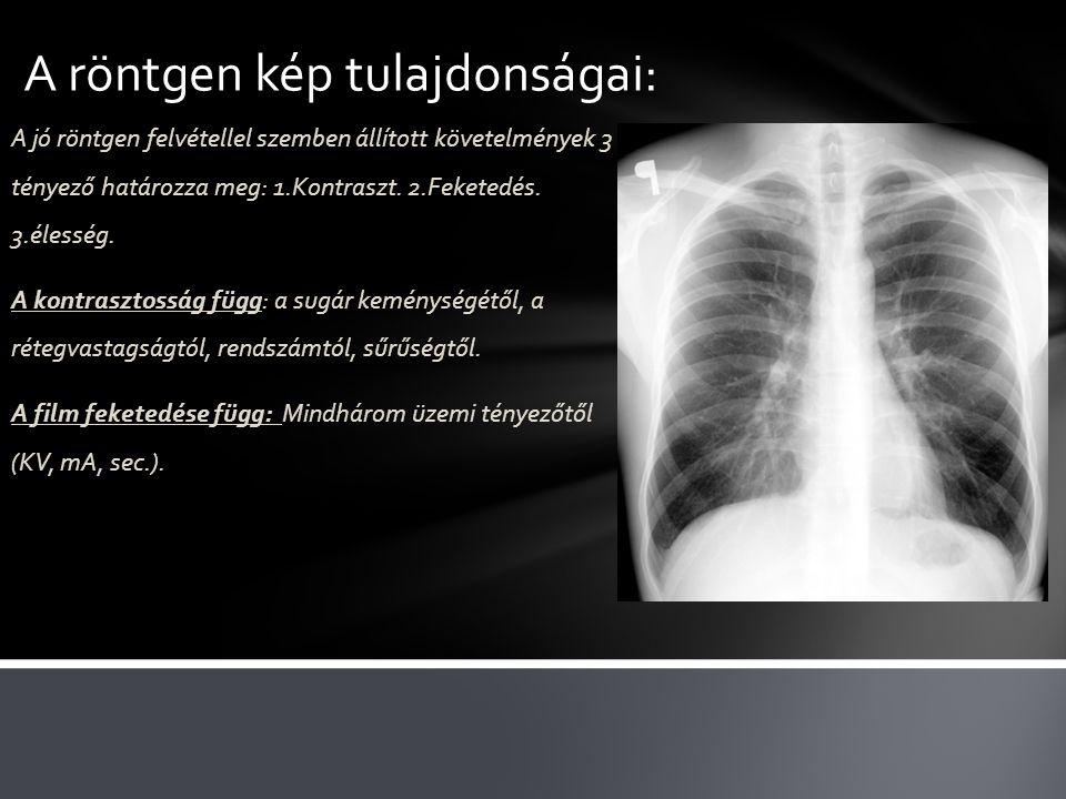 A röntgen kép tulajdonságai: