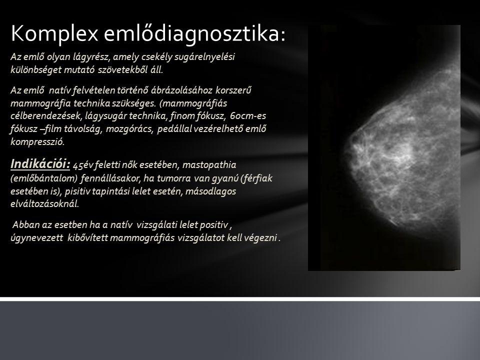 Komplex emlődiagnosztika:
