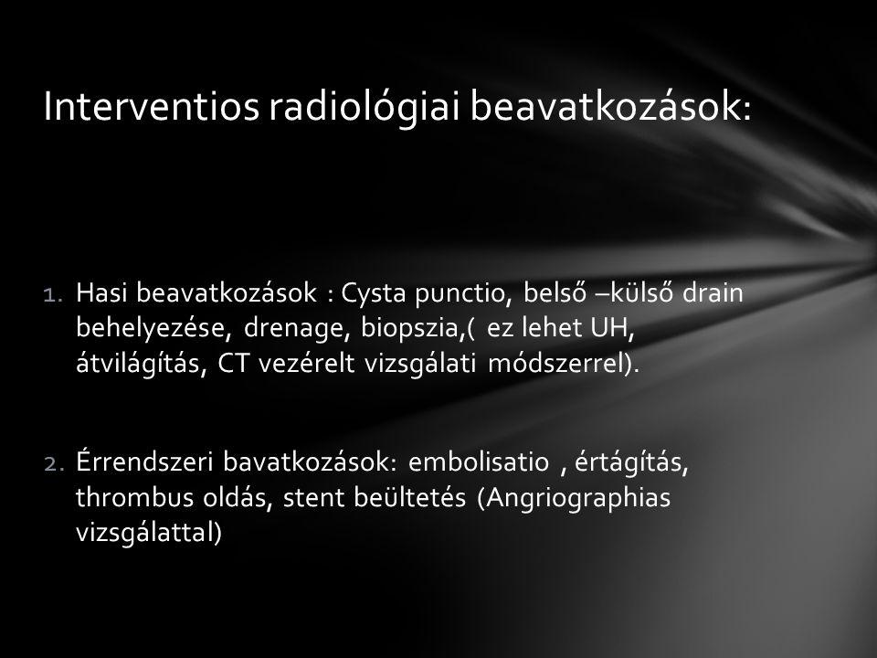 Interventios radiológiai beavatkozások: