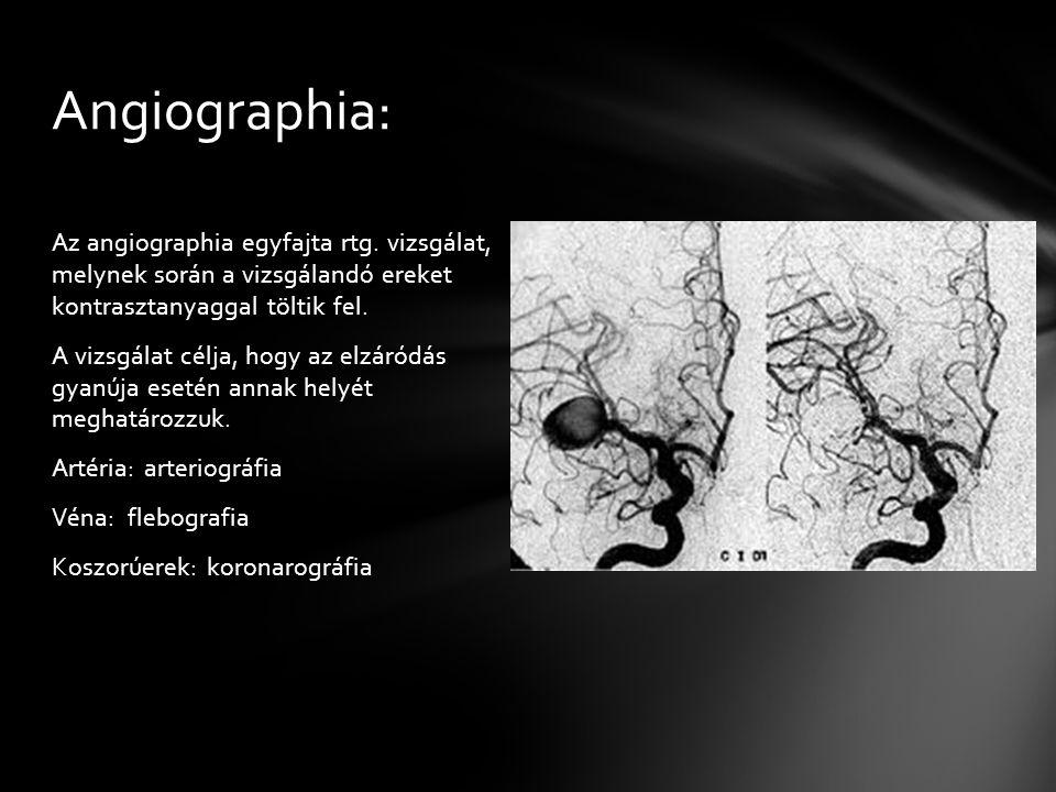 Angiographia: