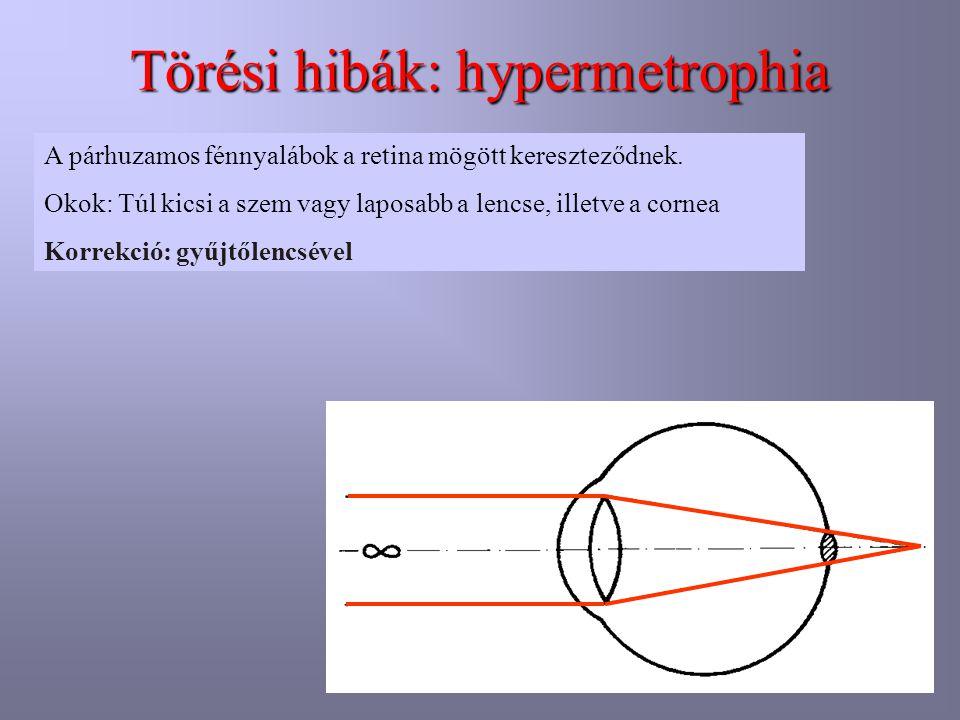 Törési hibák: hypermetrophia