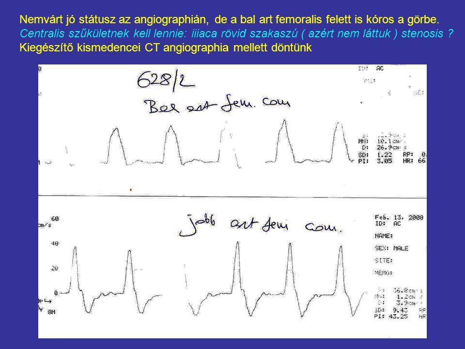 Nemvárt jó státusz az angiographián, de a bal art femoralis felett is kóros a görbe.