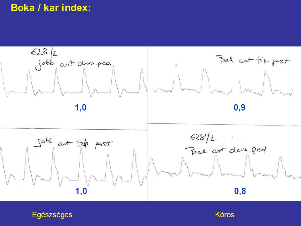 Boka / kar index: 1,0 0,9.
