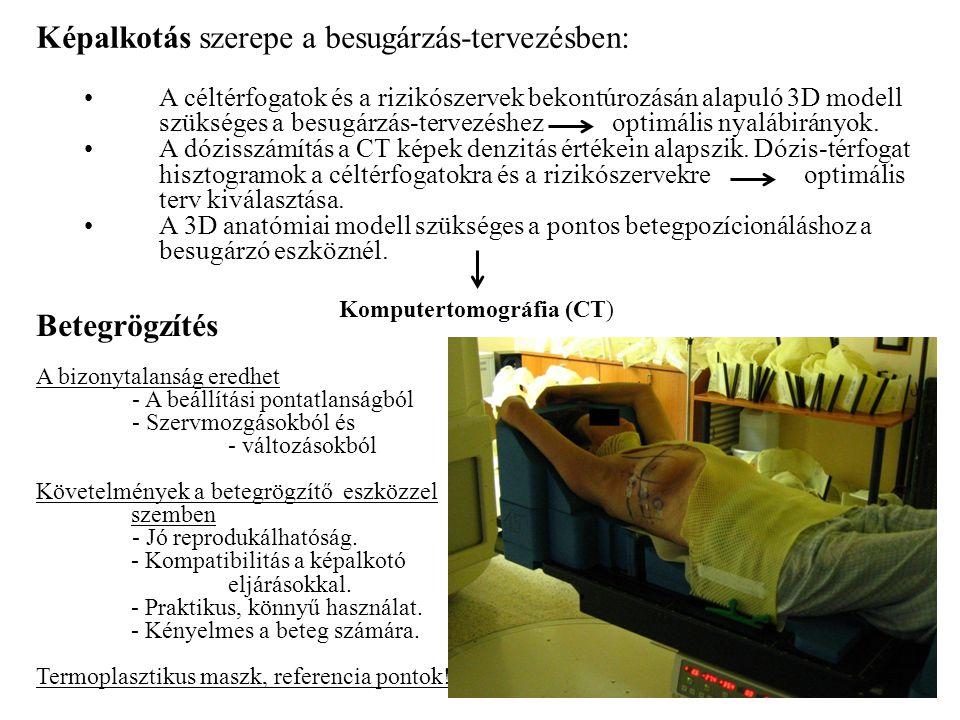 Komputertomográfia (CT)