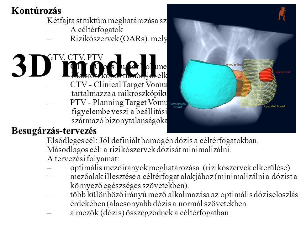 3D modell Kontúrozás Kontúrozás Besugárzás-tervezés