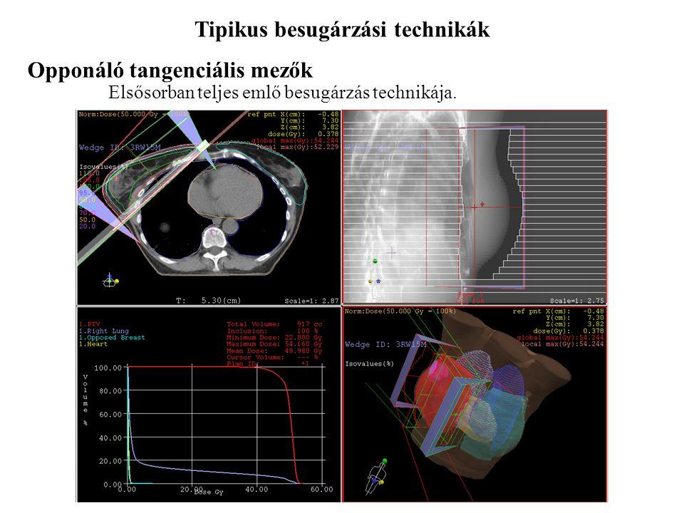Tipikus besugárzási technikák