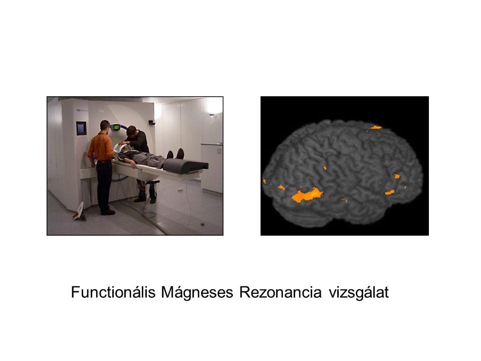 Functionális Mágneses Rezonancia vizsgálat