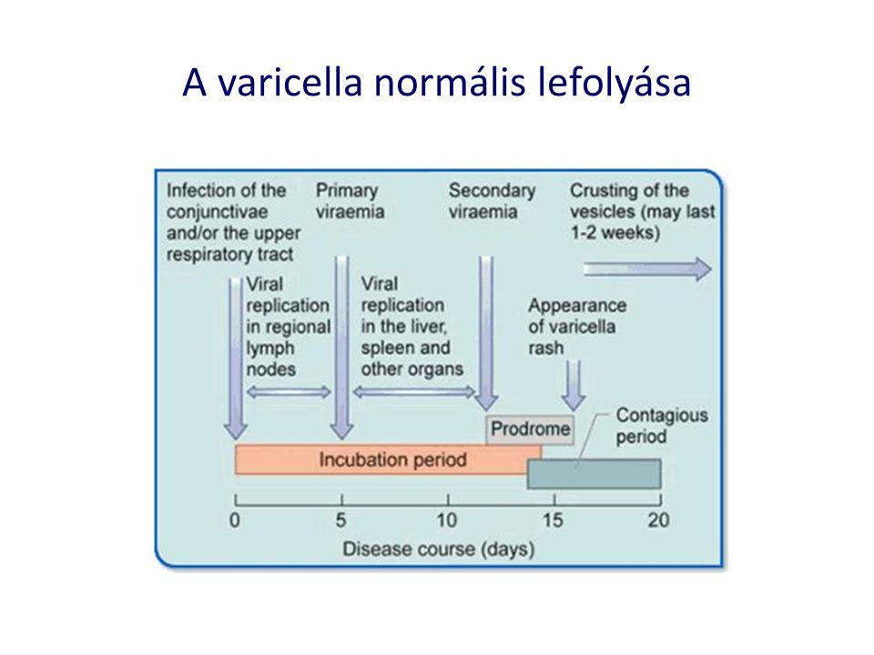A varicella normális lefolyása