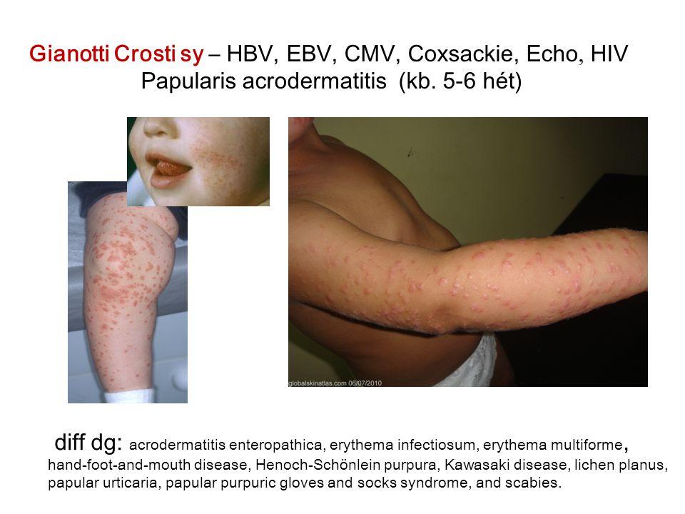 Gianotti Crosti sy – HBV, EBV, CMV, Coxsackie, Echo, HIV