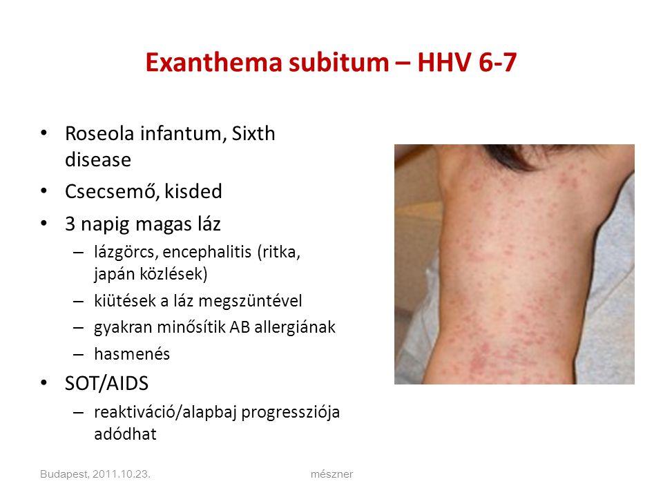 Exanthema subitum – HHV 6-7