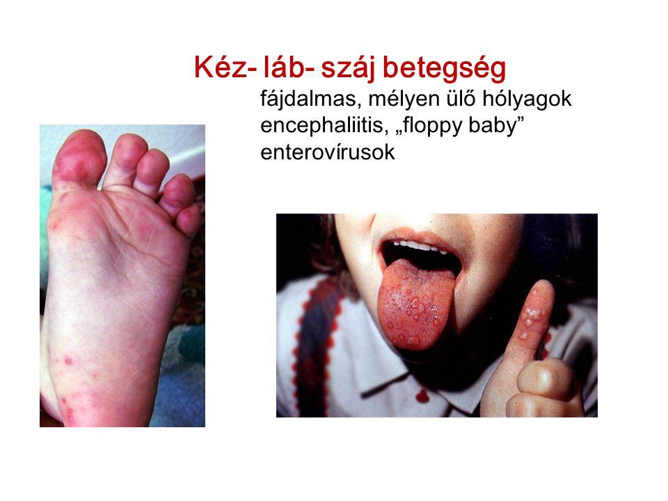 Kéz- láb- száj betegség