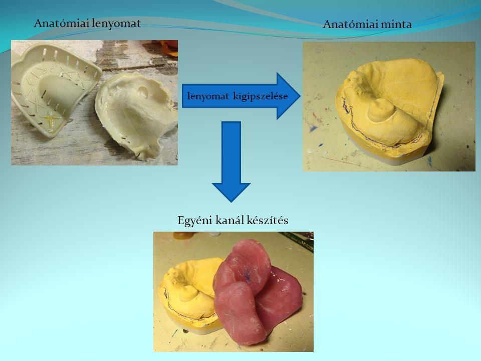 Anatómiai lenyomat Anatómiai minta Egyéni kanál készítés
