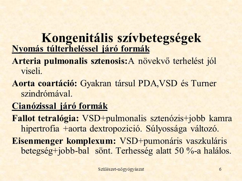 Kongenitális szívbetegségek