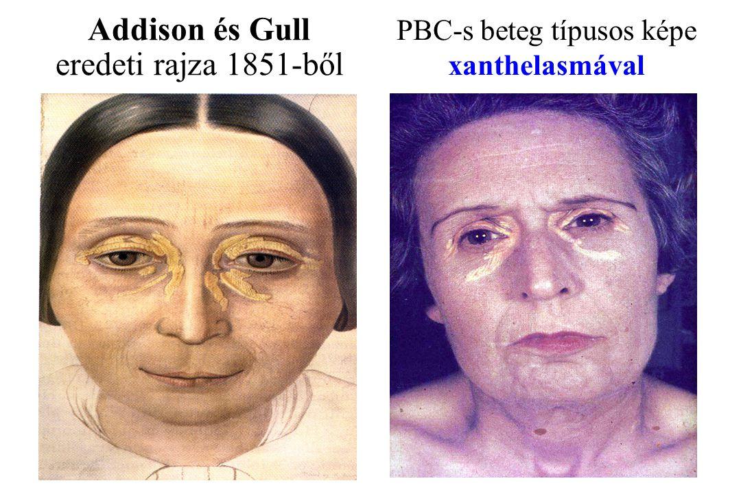 PBC-s beteg típusos képe xanthelasmával