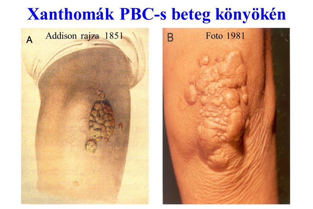 Xanthomák PBC-s beteg könyökén