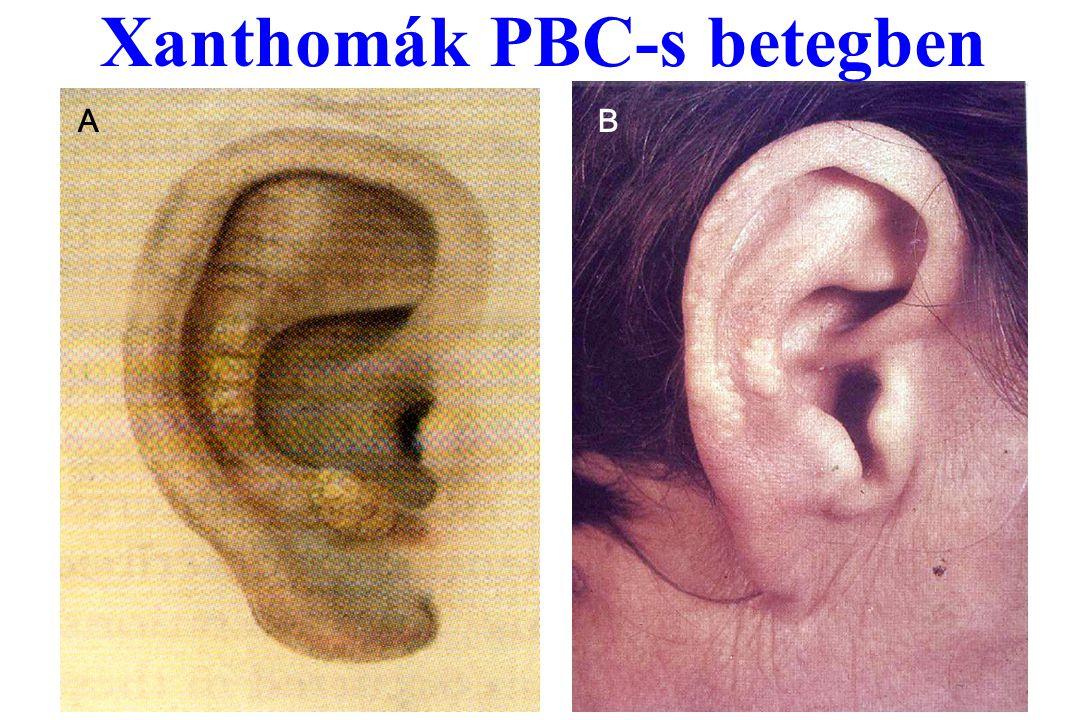 Xanthomák PBC-s betegben