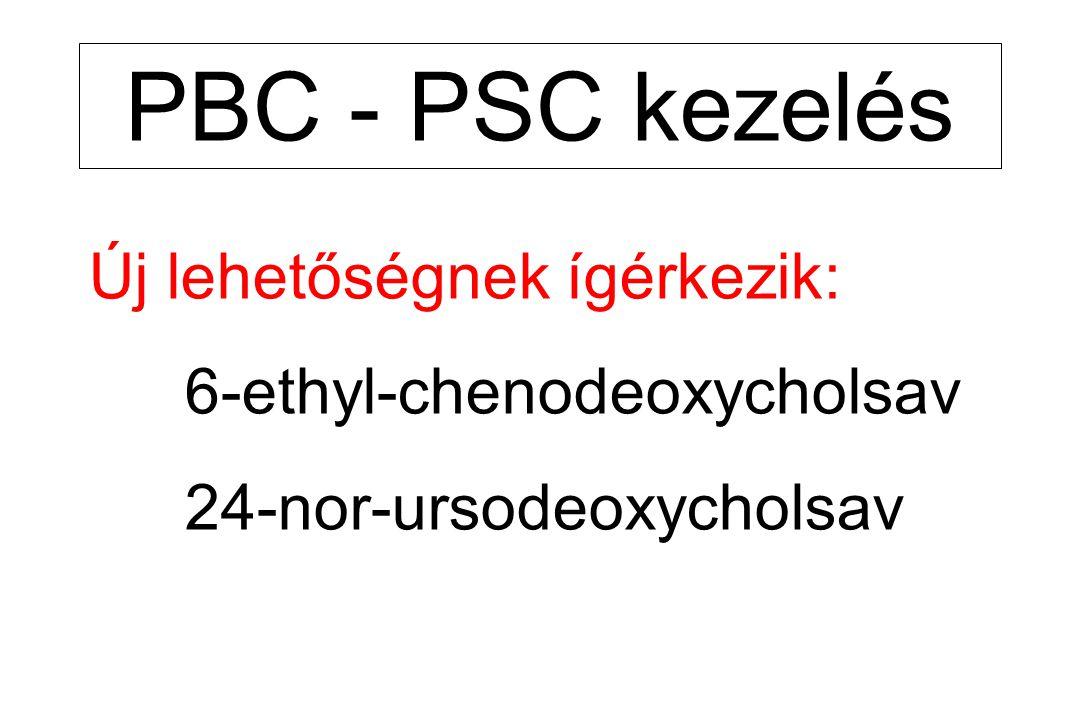 PBC - PSC kezelés Új lehetőségnek ígérkezik: 6-ethyl-chenodeoxycholsav