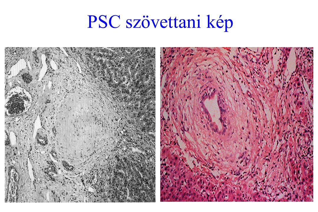 PSC szövettani kép
