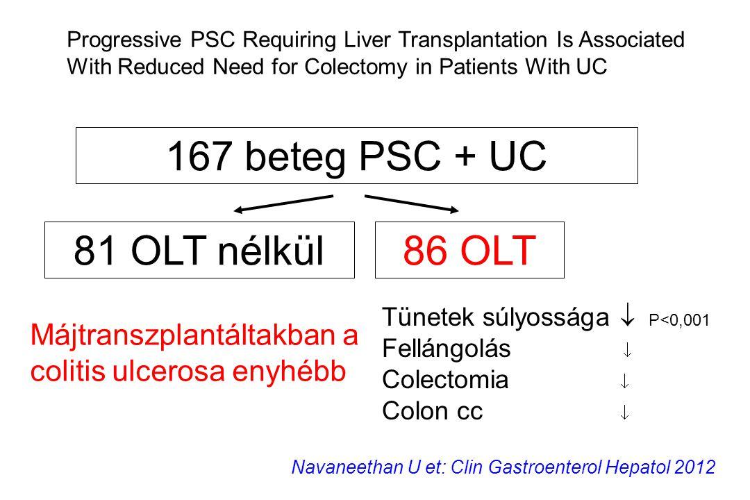 167 beteg PSC + UC 81 OLT nélkül 86 OLT