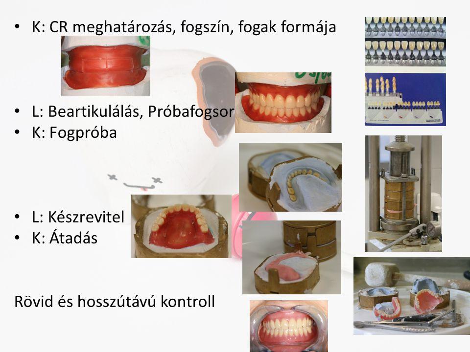 K: CR meghatározás, fogszín, fogak formája