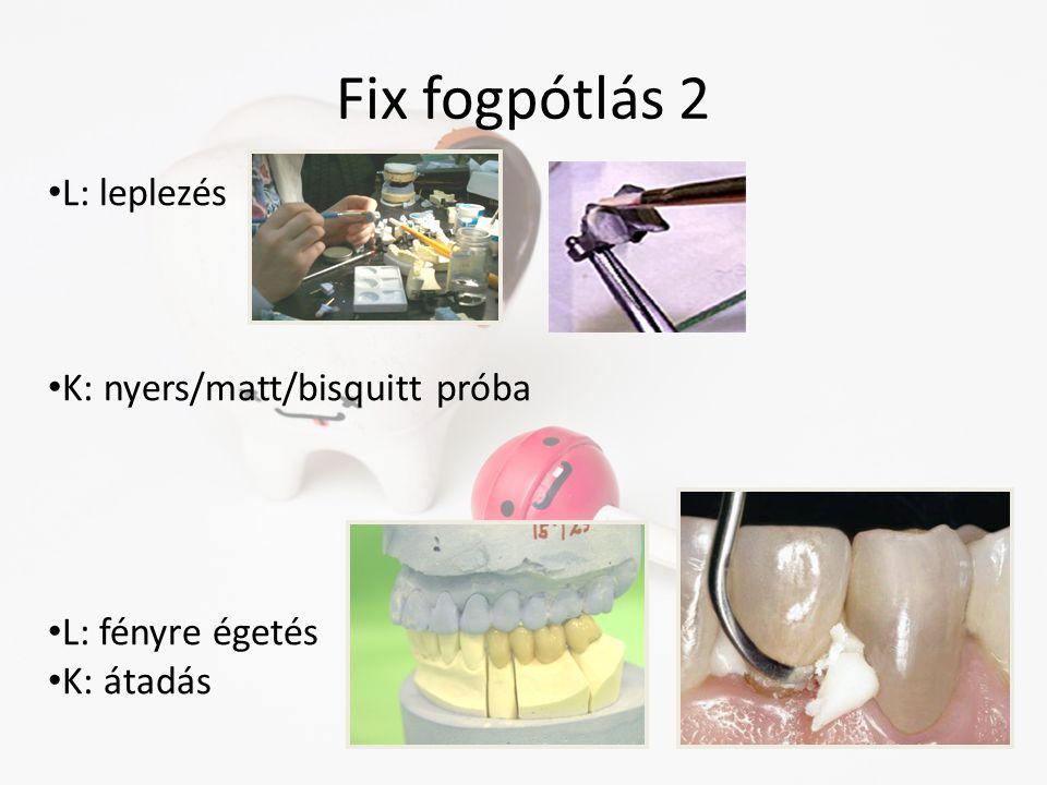 Fix fogpótlás 2 L: leplezés K: nyers/matt/bisquitt próba